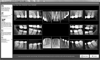Digital Dental X-Rays (Digital Radiography)