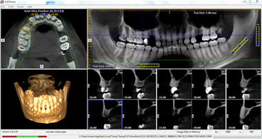 Digital Dental CT-Scan (Digital Radiography)