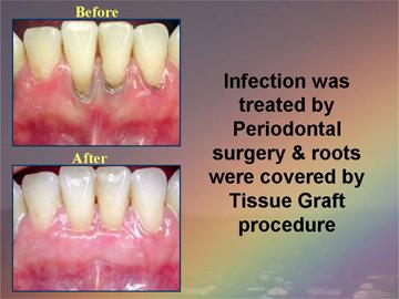 Periodontal Gum Disease Treatments Z Dental Group