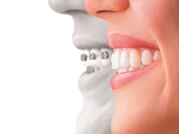 Beverly Hills Invisalign Dentist