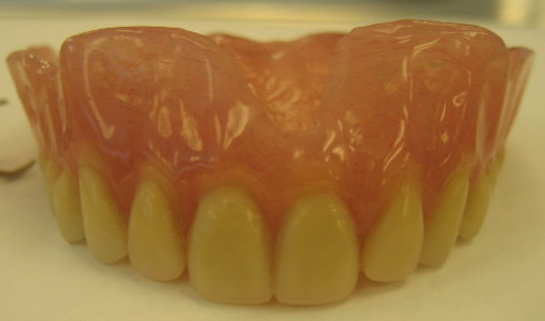 Maxilary Denture