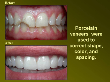 Porcelain Venners. Los Angeles Dentist