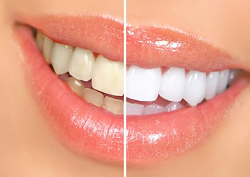 Whitening For Life Z Dental Group Los Angeles