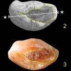 Within a dotted yellow lines, a beeswax stuffing can be seen in a form of this newly detected 6,500-year-old <b>tooth</b>.