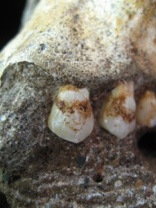 Tartar on <b>teeth</b> of Australopithecus sediba